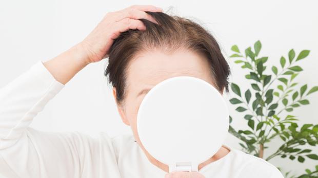 女性がかかりやすい脱毛症の種類3つ|原因を知って事前に対策